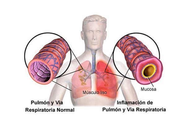 Bronquios inflamados - Bronquitis