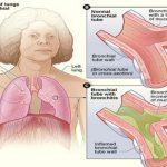 ¿Qué es la Bronquitis?