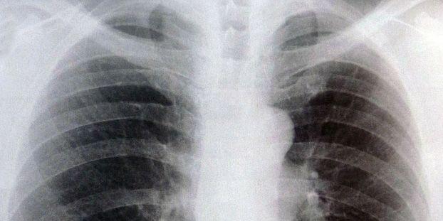 Síntomas de la Bronquitis Crónica