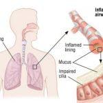 ¿Qué es la Bronquitis Aguda?