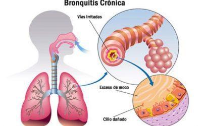 Qué es la bronquitis crónica: causas, síntomas, diagnóstico y tratamientos