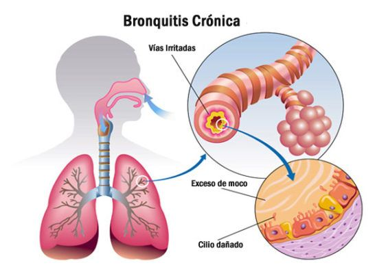 ¿Qué es la Bronquitis Crónica?
