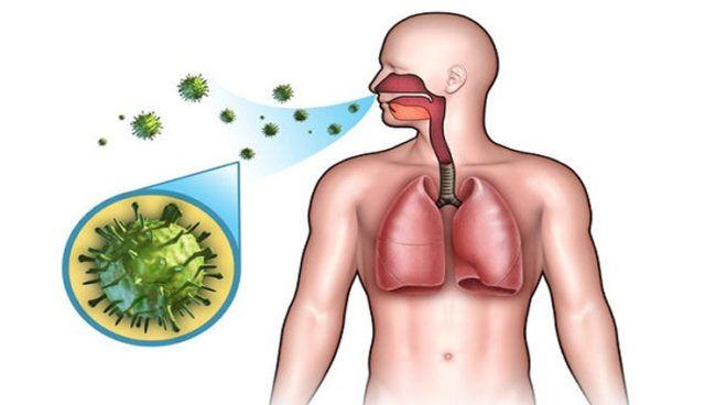 bronquitis aguda como detectarla y sintomas
