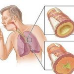 Bronquitis: Tipos y consejos para prevenirlas