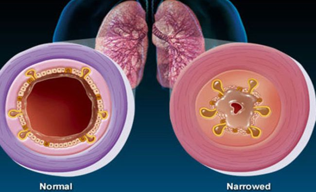 bronquitis causas
