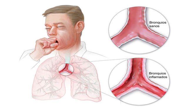 ¿Es la bronquitis aguda una enfermedad que se puede evitar?