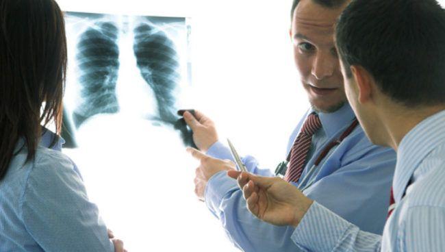 tratamiento de la bronquitis aguda