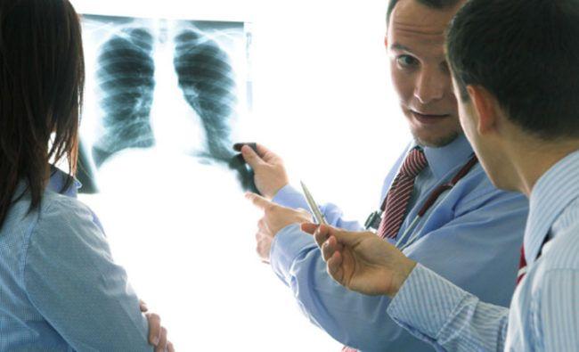 tratar la bronquitis naturalmente