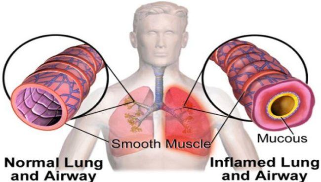 causas-y-sintomas-de-la-bronquitis-aguda