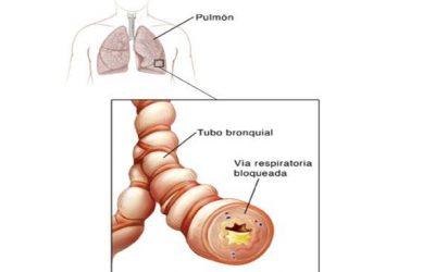 Recomendaciones para evitar la bronquitis aguda