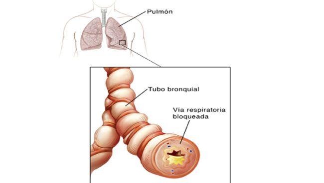 recomendaciones-para-evitar-la-bronquitis-aguda