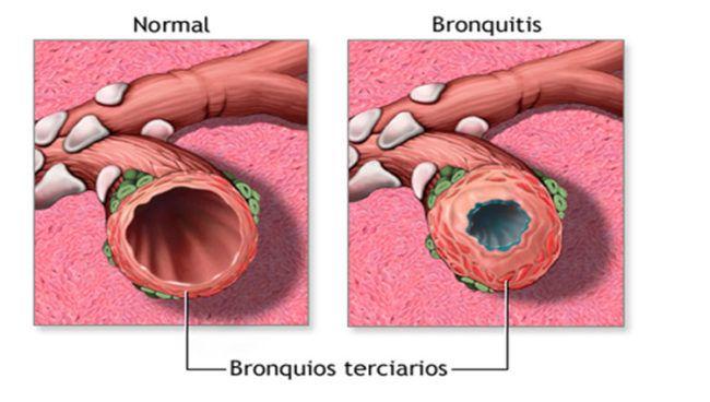 ¿Qué es la bronquitis aguda y cómo puede afectar a los adultos?