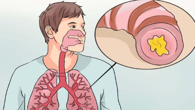 Bronquitis aguda y crónica en adultos