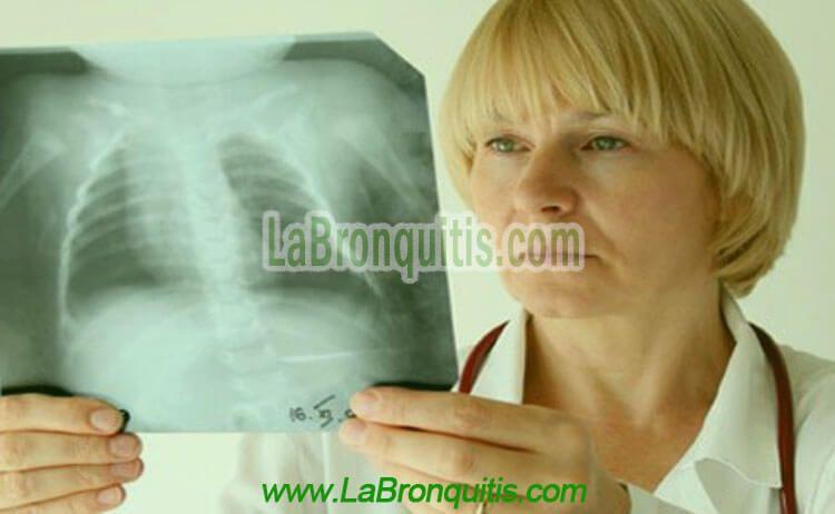 Diagnóstico y pruebas para el asma bronquial